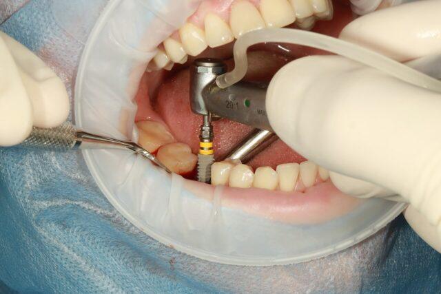 Do I need dental implants